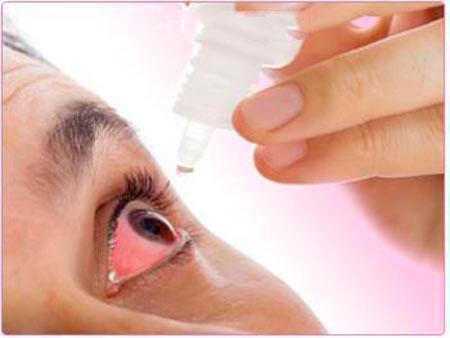 اشک مصنوعی چیست و مصرف خودسرانه آن چه عوارضی دارد؟
