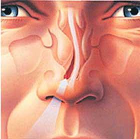 سخت شدن تنفس به دلیل انحراف تیغه بینی؛ انحراف تیغه بینی چیست؟