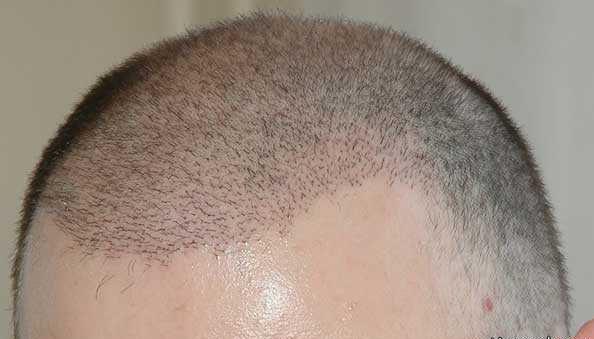 """روش های """"کاشت مو"""" و تمام اطلاعات در مورد کاشت مو و هزینه هایش"""