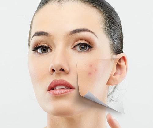 علت جوش صورت و درمان آکنه و جوش صورت