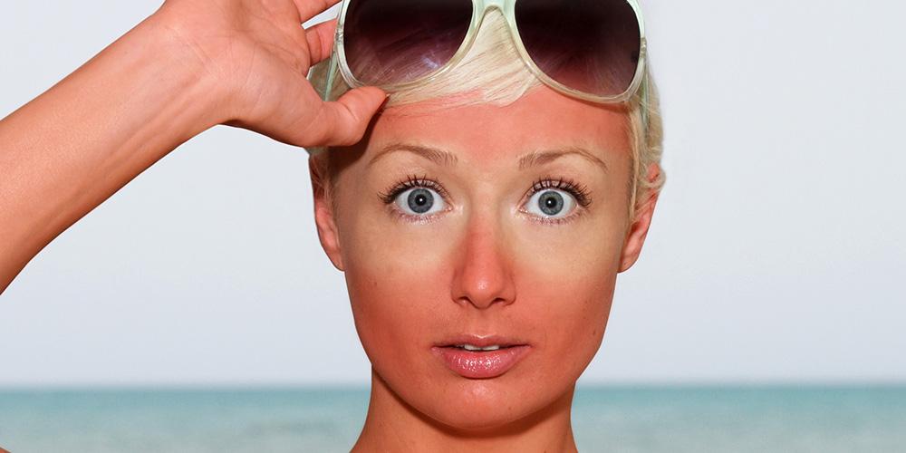 انواع روشهای درمان آفتاب سوختگی