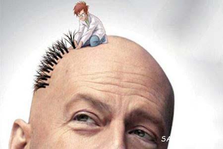 کاشت مو، عوارض و مراقبتهای بعد از کاشت مو