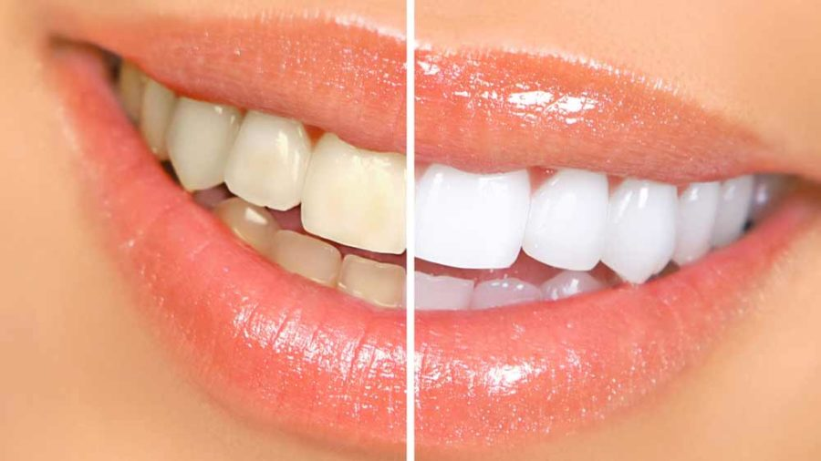 روش سفید کردن دندان