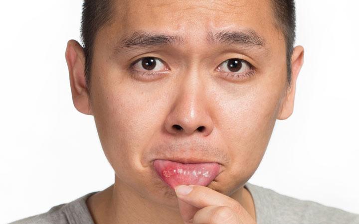 علل زخم دهان و درمان زخم دهانی