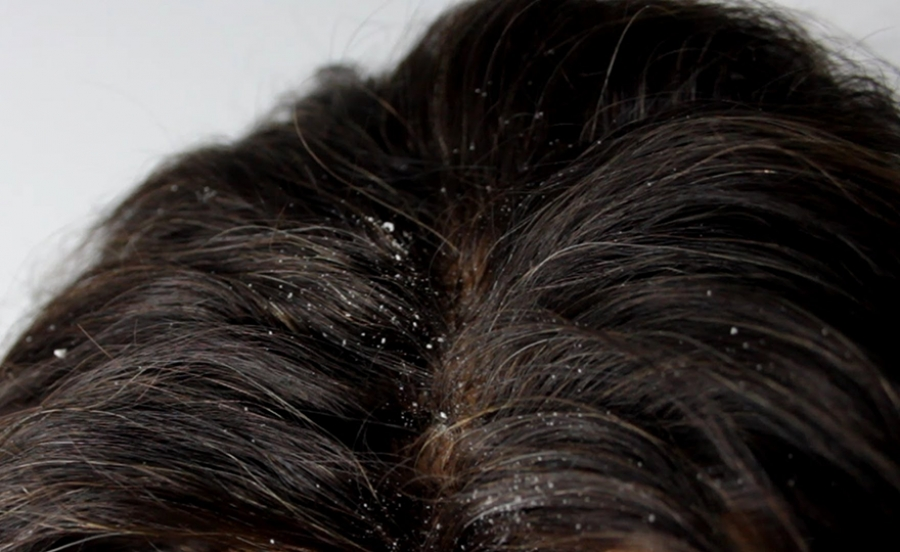 علت شوره سر و راههای درمان شوره سر