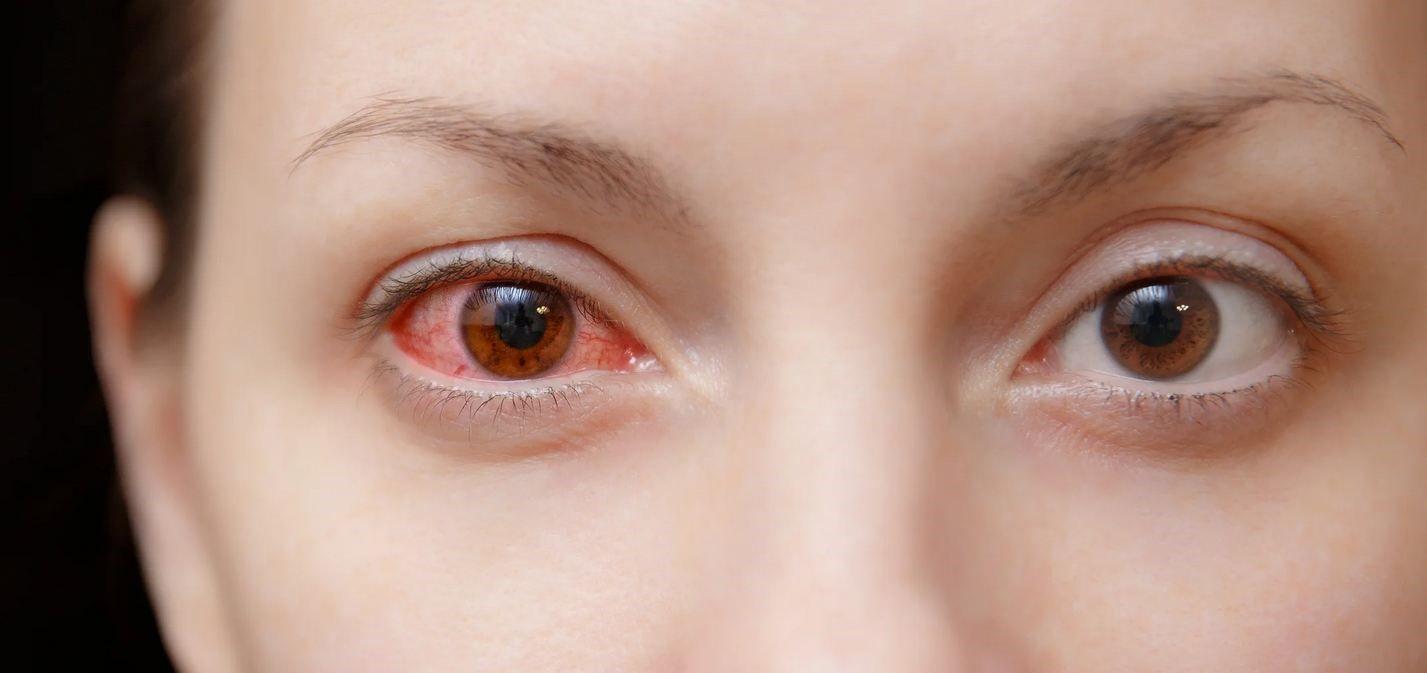 چرا بعد از گذاشتن لنز چشمها قرمز میشوند؟