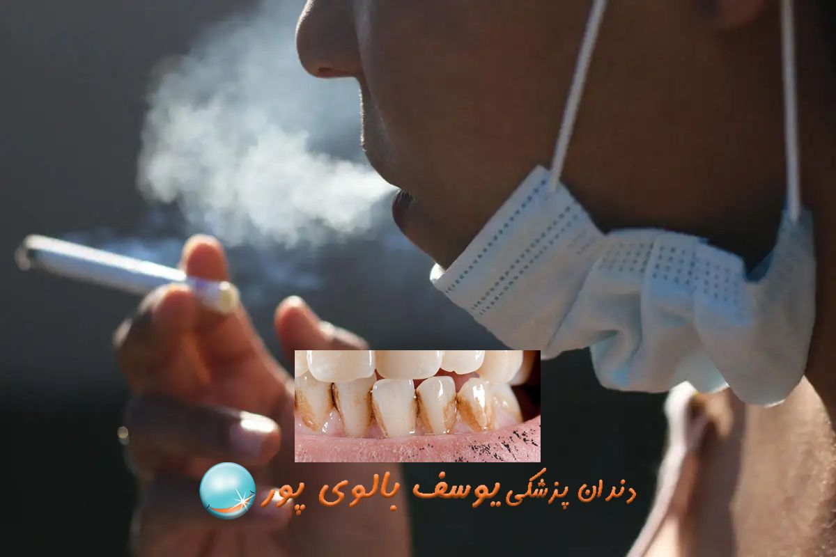 سیگاری ها از چه روش هایی برای سفیدی دندان استفاده کنند؟