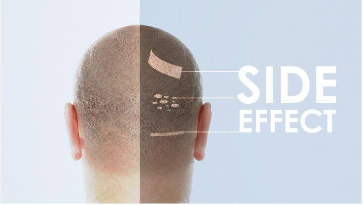 معایب و عوارض کاشت مو در شرایط غیر تخصصی را بشناسید