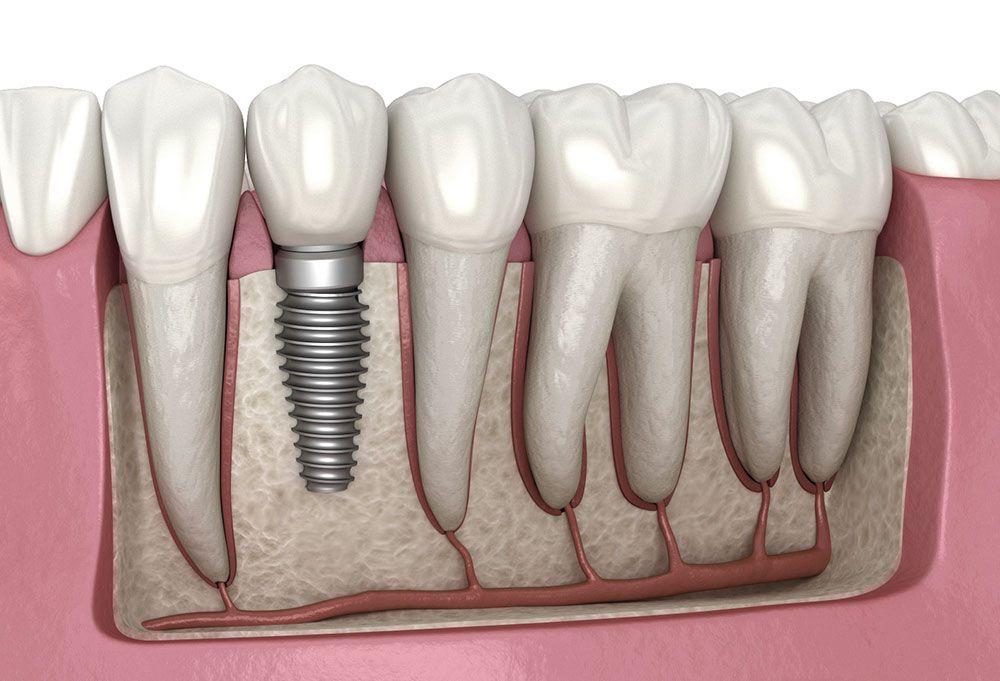 10 نکته که باید قبل از ایمپلنت دندان بدانید!